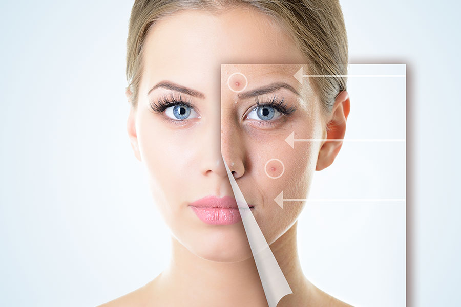 FACIAL REJUVENATION FOR FLAWLESS SKIN!