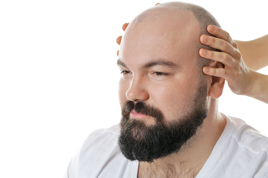 Side Effects of Hair Transplant: Hair Growth