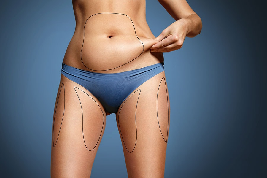 Know How To Make Liposuction Risk Free & Get Best Results