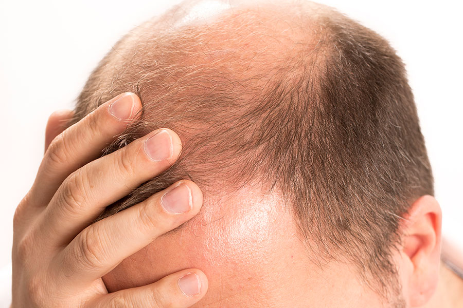 Precautions before and after Hair Transplant