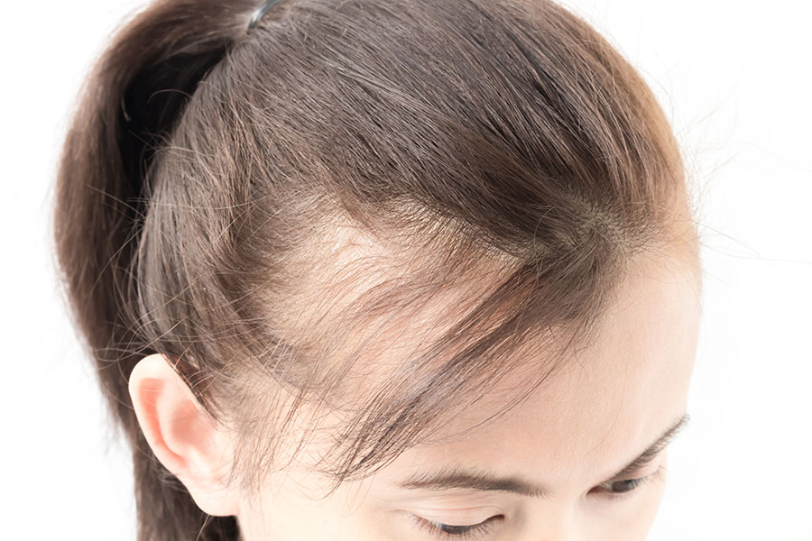 How to easily make your Hair Transplantation painless?