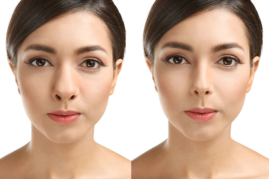 What is done in Rhinoplasty?