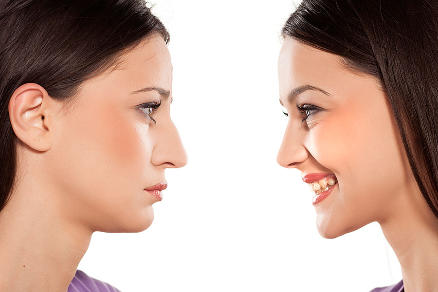 Your Guide to Cosmetic Rhinoplasty/Nose Surgery