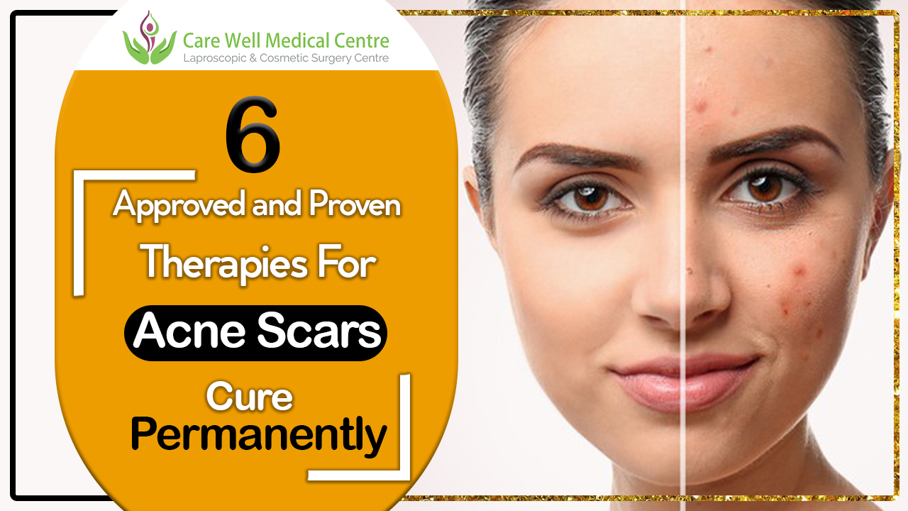 6 Approved And Proven Therapies For Acne Scars Cure Permanently Blog Care Well Medical Centre